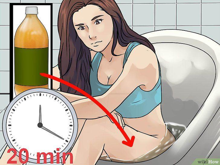 Imaginea intitulată Tratarea chisturilor vaginale Pasul 7