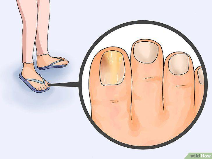 Scapa de ciuperca de la picior