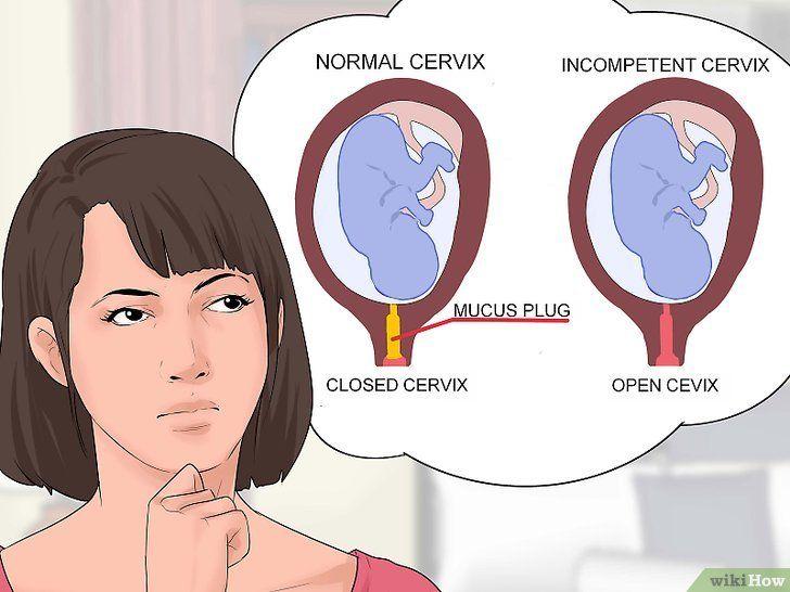Preveniți insuficiența cervicală