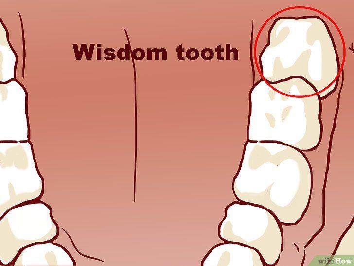 Distingeți între un dinte proeminent și retardat de înțelepciune